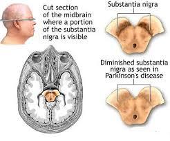 Pengobatan Alami Demensia Alzheimer
